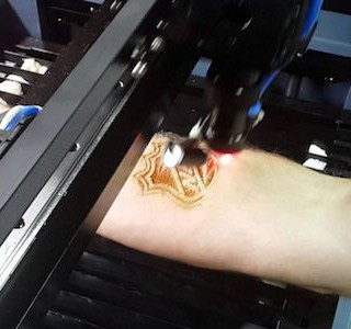 TECHNICART : Tattoos Laser